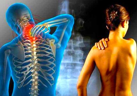 osteochondrosis neck pain)