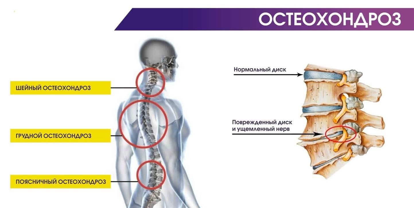 мышечный остеохондроз симптомы идея